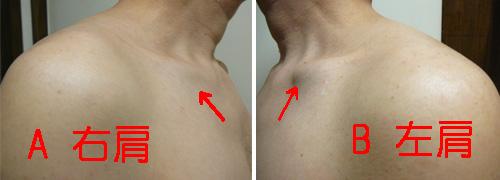 鎖骨の歪みによる胸郭出口症候群
