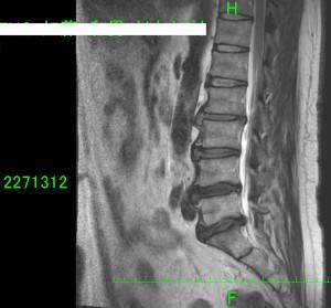 茂原市内の病院で椎間板ヘルニアのMRI画像を撮影