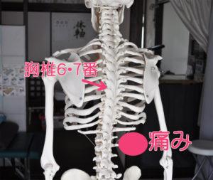 胸椎6・7番椎間板ヘルニア