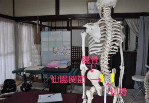 仙骨と腸骨の間にある仙腸関節の画像