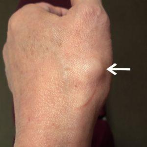 手首の痛み、ガングリオン